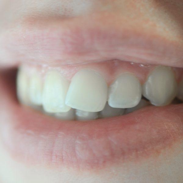 Ortodonzia Cosmetica